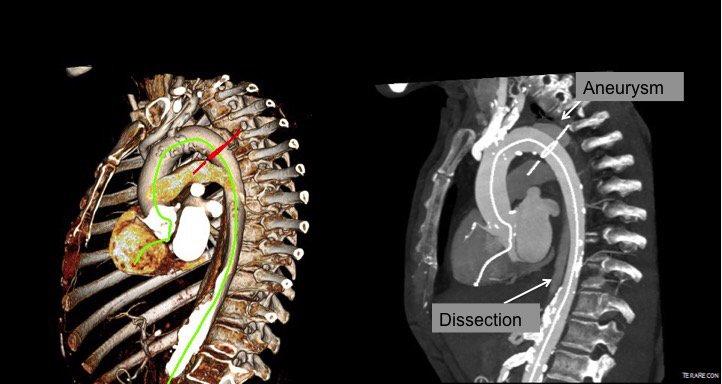 Diseccion de aorta toracica