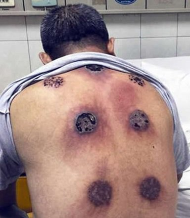 Perhaps @BBCNews & @emmaailes should have read this before writing about the joy of cupping https://t.co/BsVTWGm1Jo https://t.co/Xnb7pyvk3H