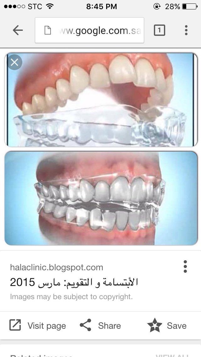 د أحمد الزومان Pa Twitter يكون لدى بعض الناس عادة العض الشديد على الاسنان اثناء النوم ما ينتج عنه تأكل السن واقي الاسنان الليلي هو الحل