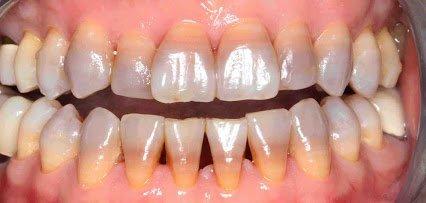 seroquel oral solution