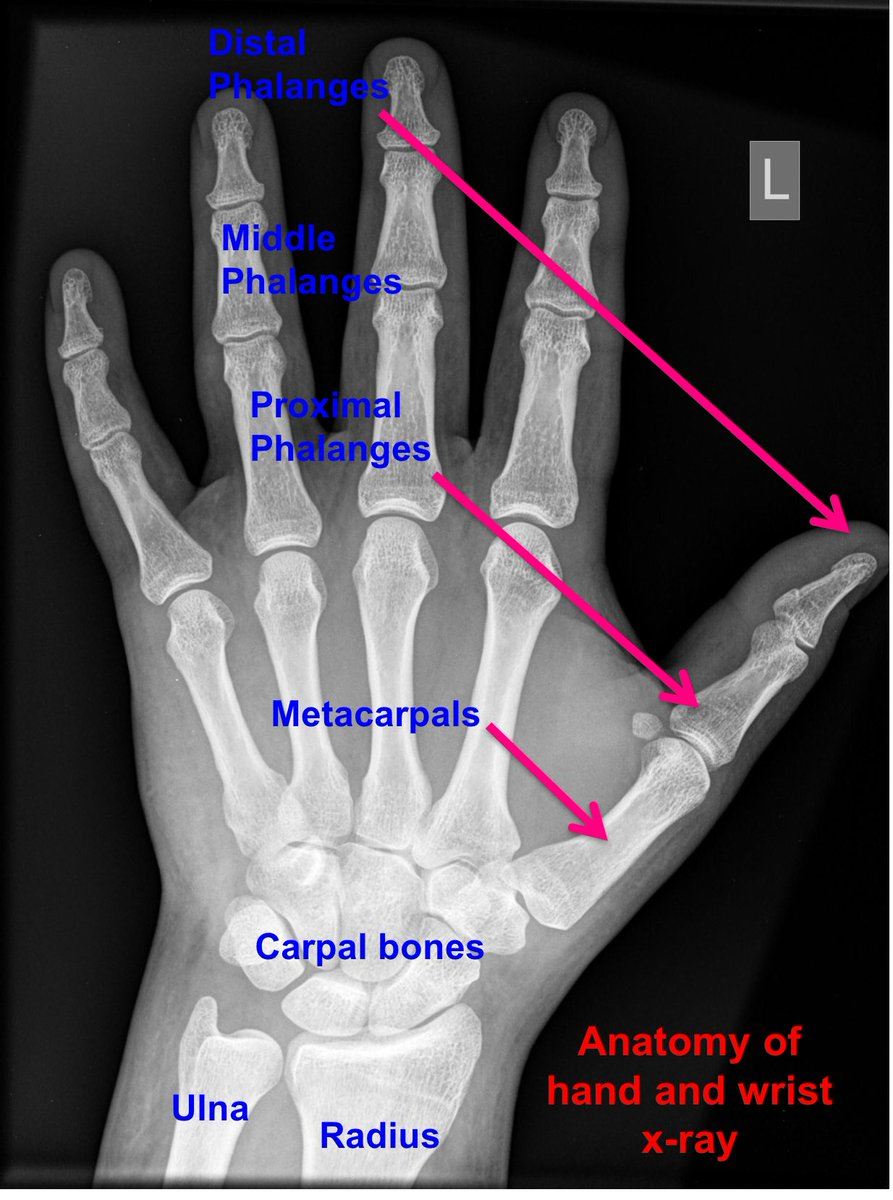 Minor Injuries For Em On Twitter Anatomy Wrist Radiology