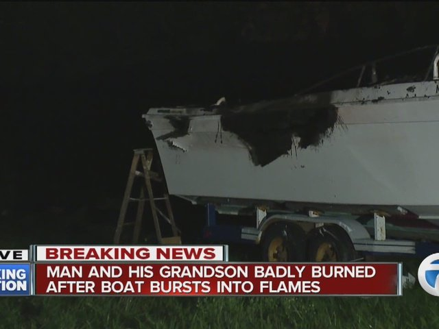 Man & grandson badly burned after boat bursts into flames in driveway.