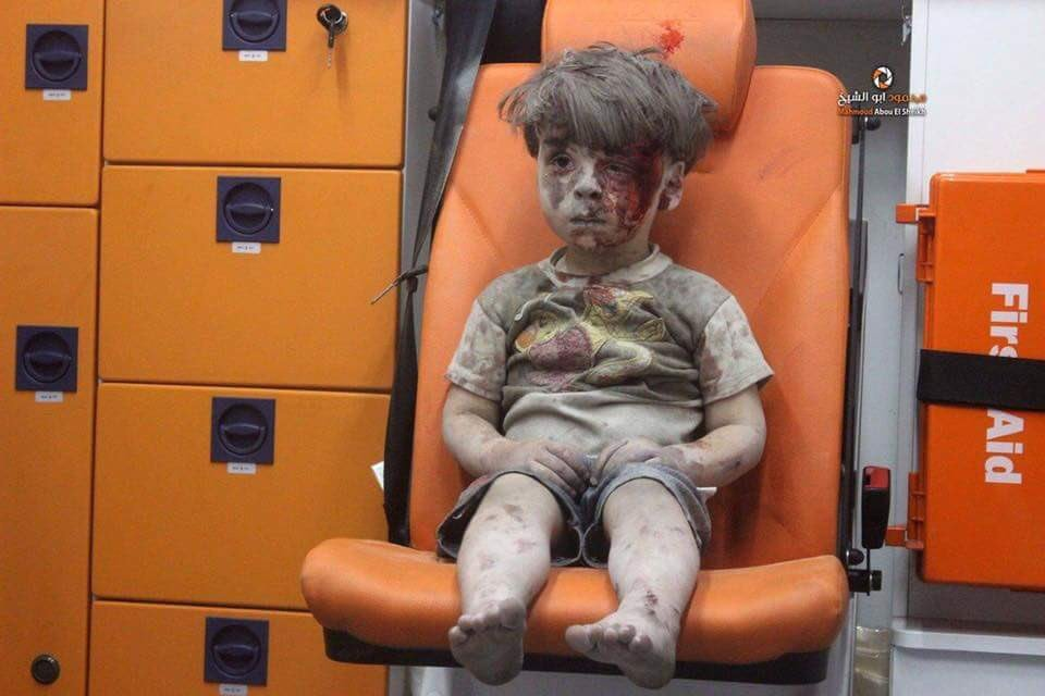 Doctor in #Aleppo just sent this photo  of a dazed child who survived an airstrike