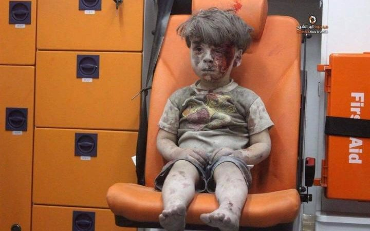This picture of a wounded Syrian boy captures just a fragment of the horrors of #Aleppo : https://t.co/fzhyOrGJRQ https://t.co/yfO7imauQO