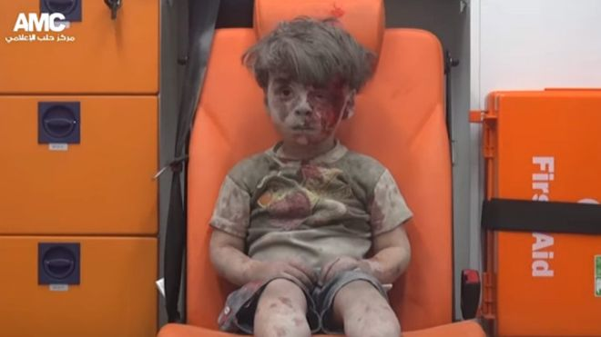 "The doctor who treated Omran Daqneesh in #Aleppo: he was ""silent, in shock and didn't cry"" https://t.co/V99shODmxs https://t.co/lvnCezq5fi"