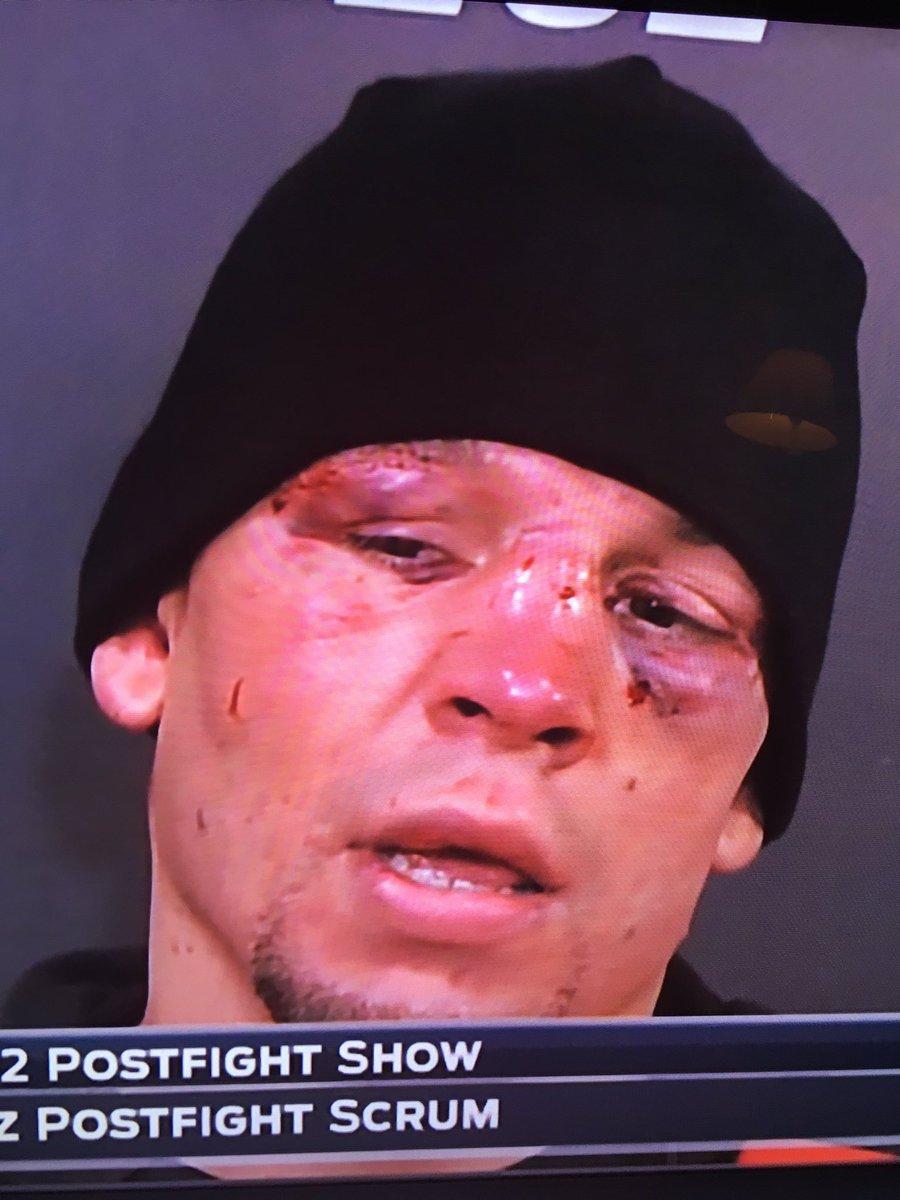 ufc broken face - photo #38