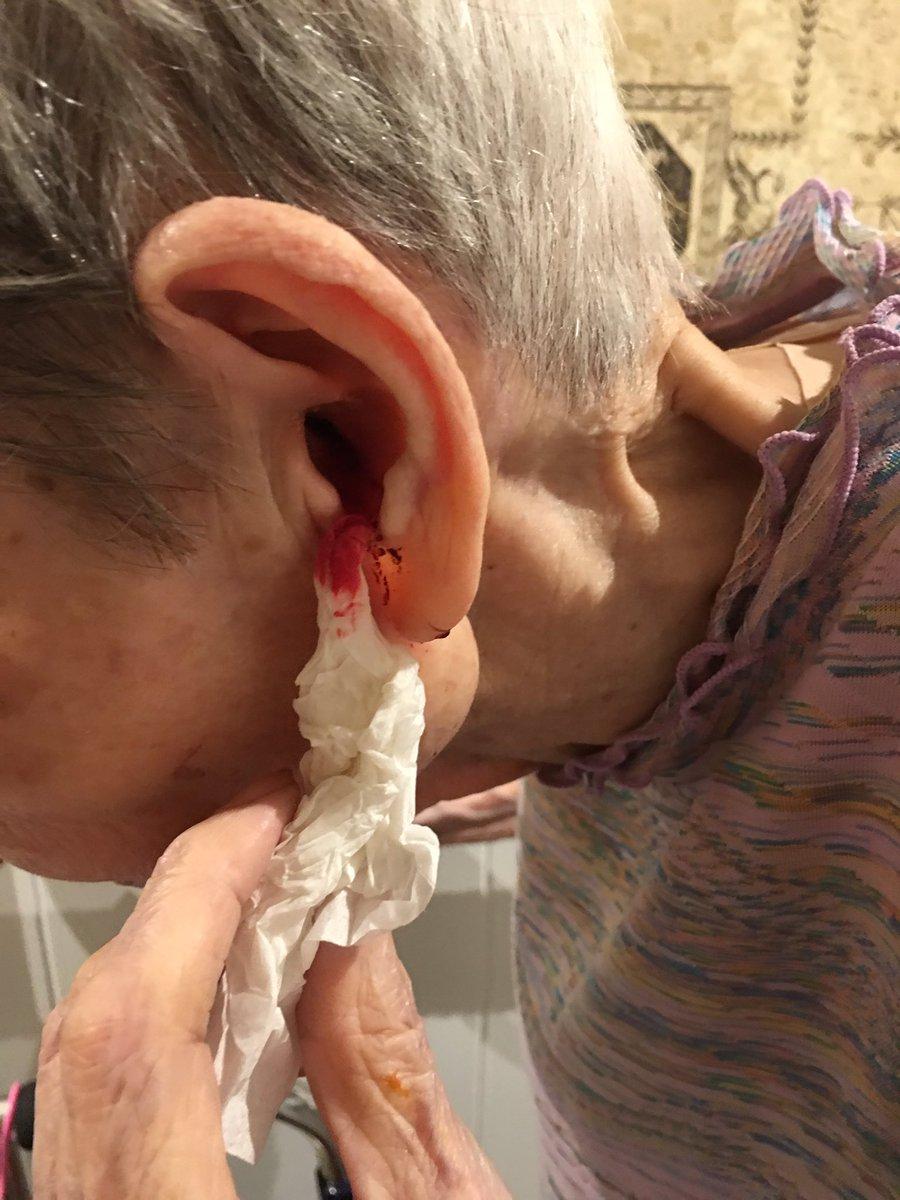 掃除 血 耳 耳から出血したら