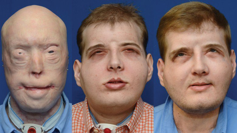 Firefighter describes life after historic face transplant: 'I have hope now'