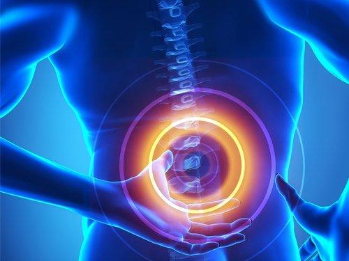 Thông báo kết quả tự chữa đau lưng do thoát vị đĩa đệm đốt sống thắt lưng bằng phương pháp DOCTOR100