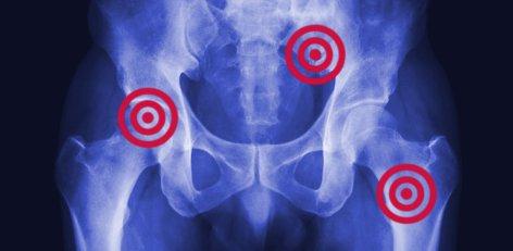 objawy raka prostaty z przerzutami