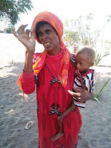 Children starving in Tuhayat, Hodeidah as US-Saudi imposed blockade continues on #Yemen #600DaysOfKillingYemenis