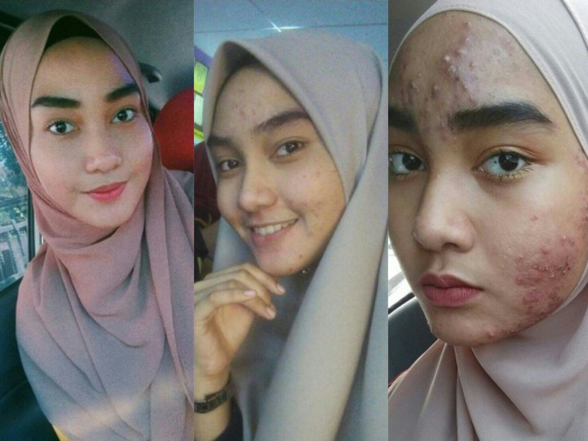 Buat Para Wanita: Hati-Hati Wajah Bisa Rusak Parah Karena Facial - AnekaNews.net