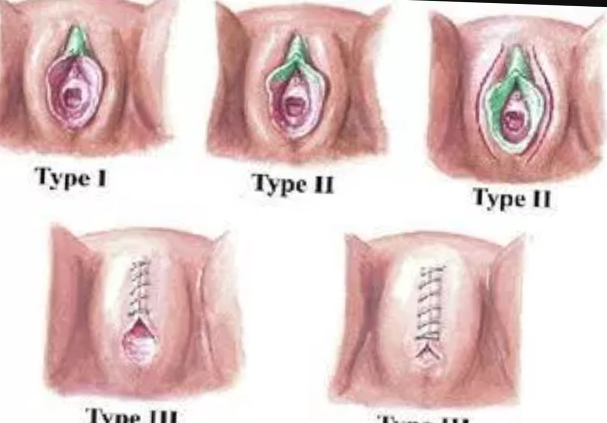 type vagina picture of