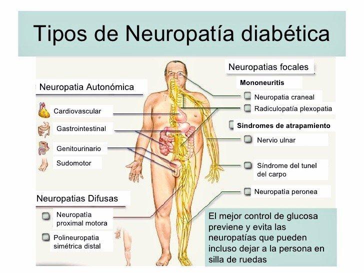 Dra.Gonzalez Sicaru on Twitter: