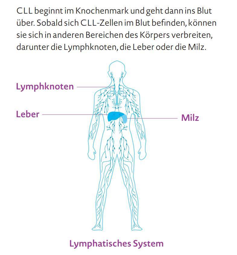 Großartig Wo Sind Lymphknoten Im Menschlichen Körper Befindet Ideen ...