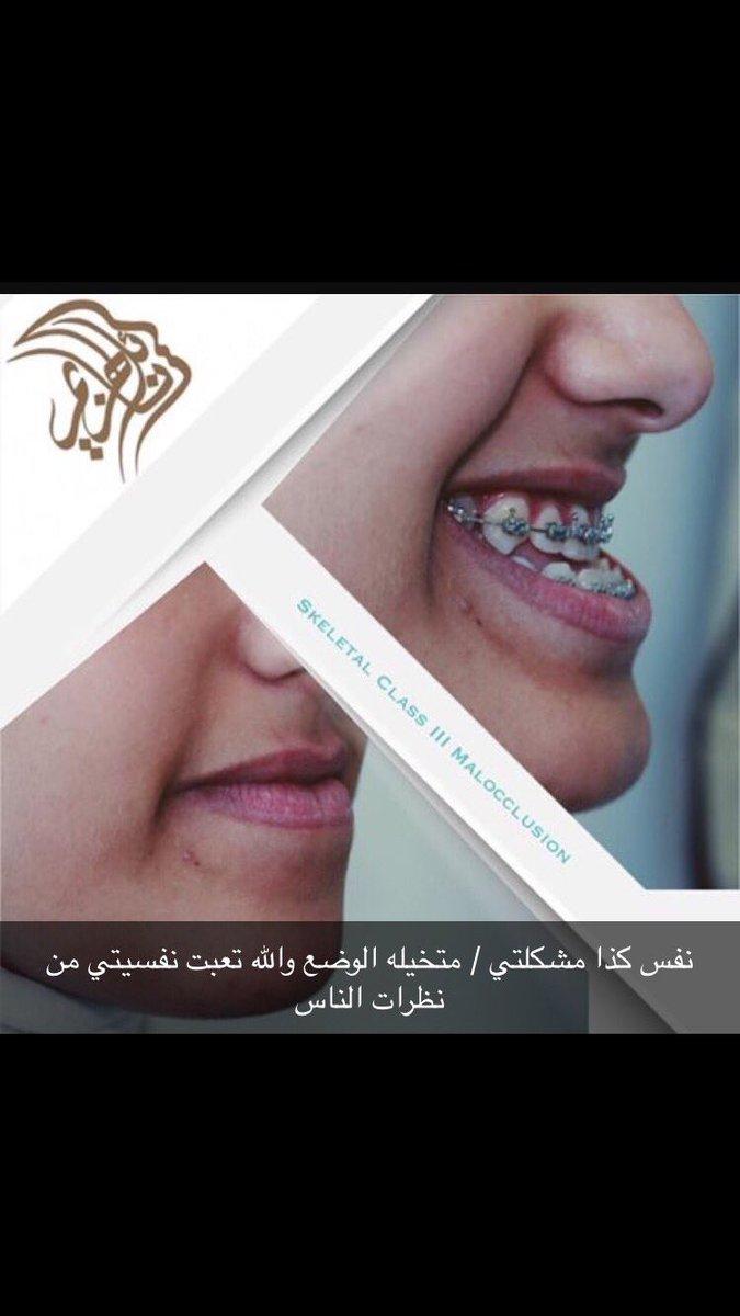 ميم On Twitter لو عندي فلوس كان ماخليتها امنيه بس شكرآ على النصيحه والاهتمام والله كريم