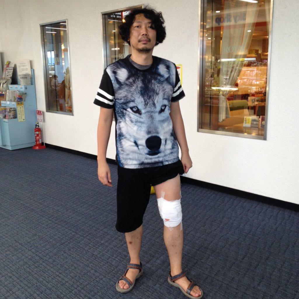 屋久島で酔って犬に近づき噛まれモモの肉をエグられたw病院の先生いわく「縫うと中に菌が残るから、清潔にして自分で肉を戻してください」、、、宿題が難し過ぎる(笑)不意に思ったが、このシャツか!?このシャツのせいで噛まれたんじゃないか!? https://t.co/yJBLlMHQ2l