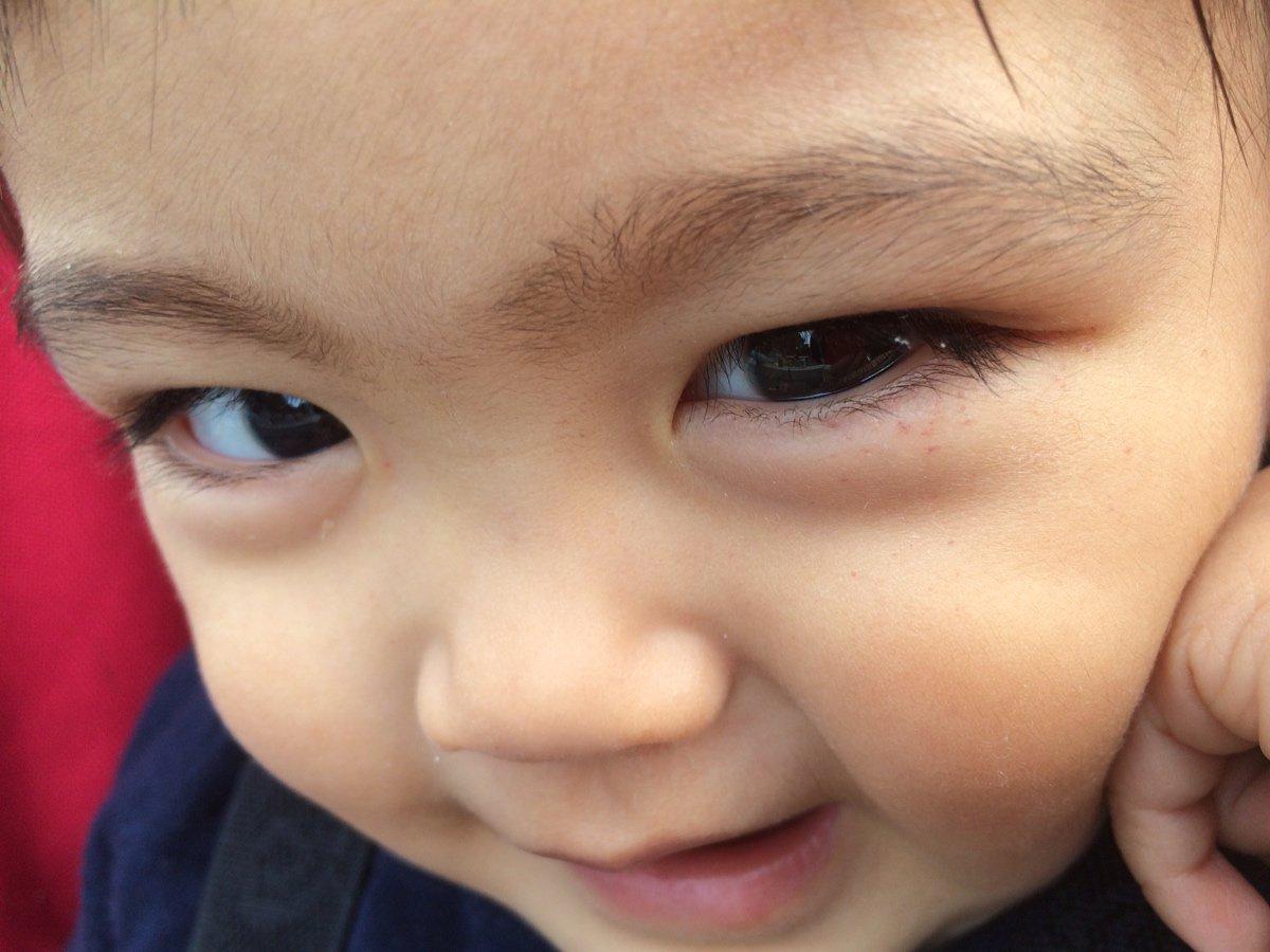 目の下 赤い 子供