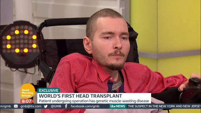 WORLD EXCLUSIVE Head transplant patient undergoing procedure for 'better life'. Watch now! https://t.co/wLDg8eO5Yg https://t.co/rozvKCGhQt
