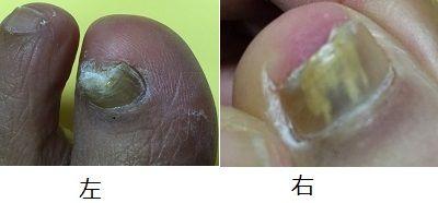 重曹 水虫