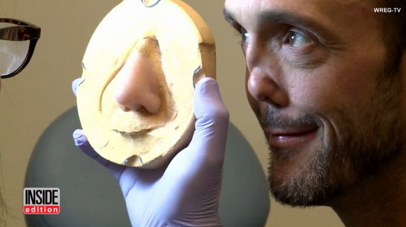 Man fitted for magnetic prosthetic nose, 10 years after his was 'crushed and deformed'