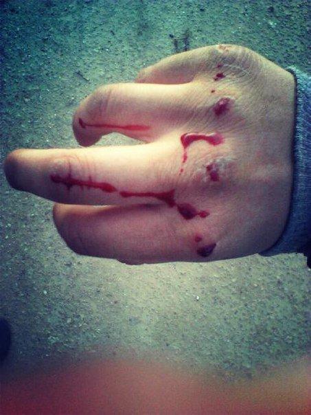 Разбитые кулаки девушки в кровь картинки девушки