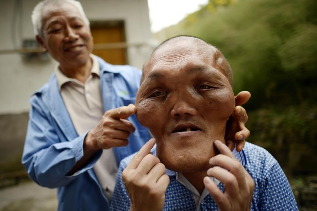 Deformed Face Man   www.pixshark.com - Images Galleries ...