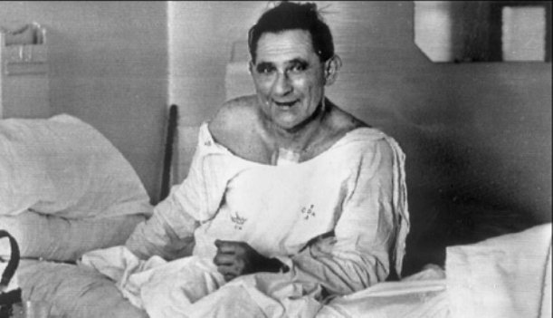 Lewis Washkansky received the 1st human heart transplant in Dec 1967 from  traffic accident victim Denise