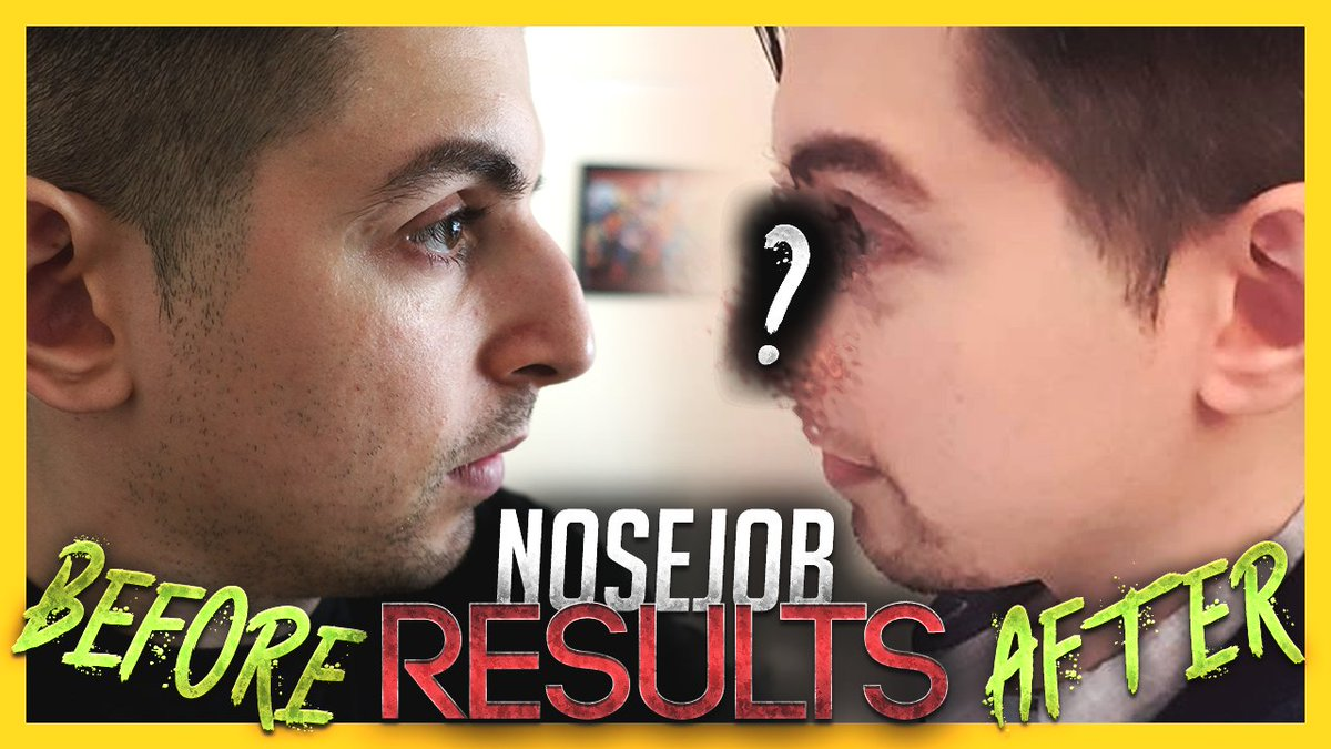 Gross Gore On Twitter Okay Guys I Got A Nose Job The Video S Out Tell Me What You Think Https T Co Kidh8ozsr4 You can watch gross gore on hitbox now! gross gore on twitter okay guys i
