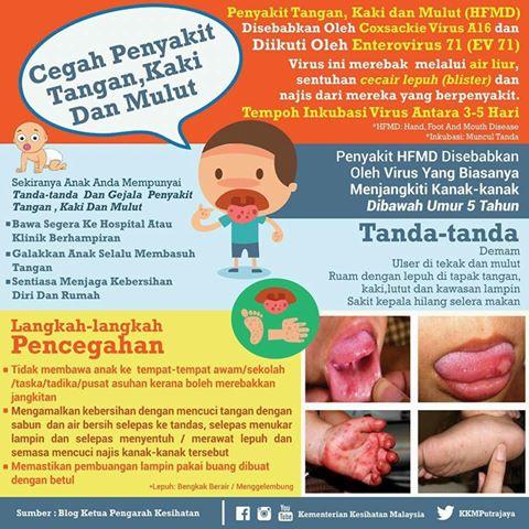 Kkmputrajaya Su Twitter Cegah Penyakit Tangan Kaki Mulut Hfmd Ketahui Tanda Dan Pencegahan Penyakit Ini Hfmd Infografikkkm