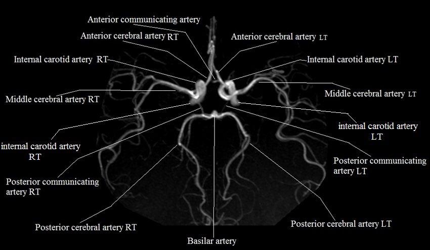 Saudi Mri Tech On Twitter Circle Of Willis Anatomy In Details