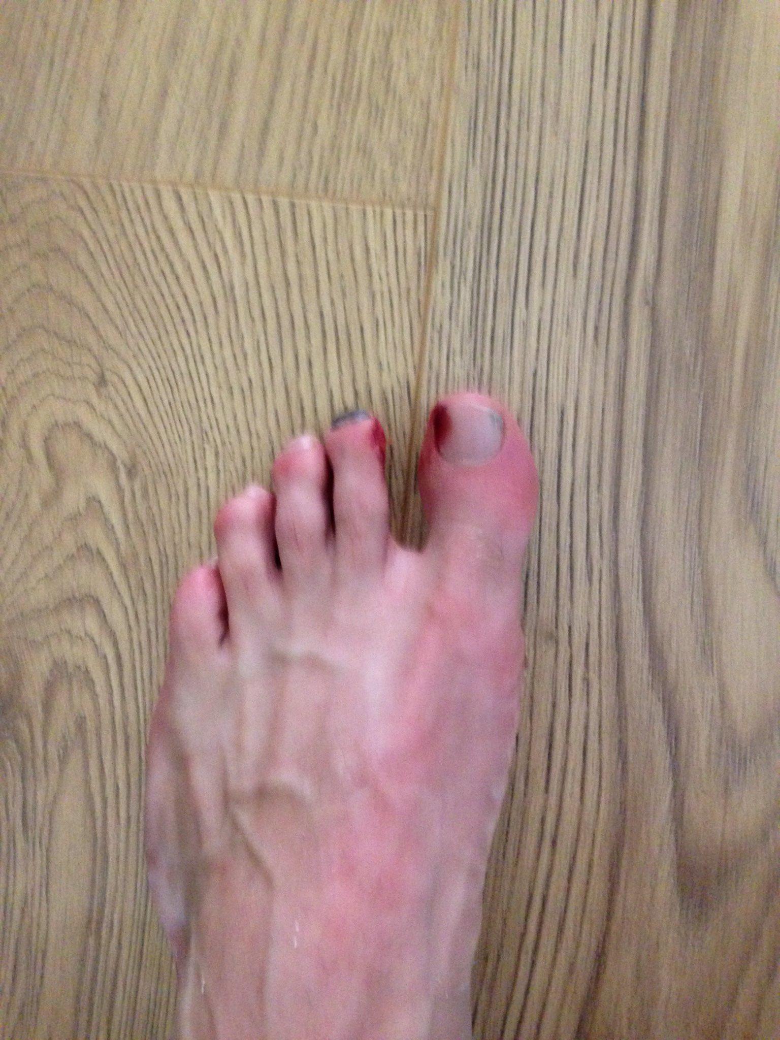 The bbw foot fetish pics quite good