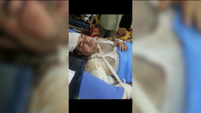 Local family pleads for help to bring severely injured father back from Iraq