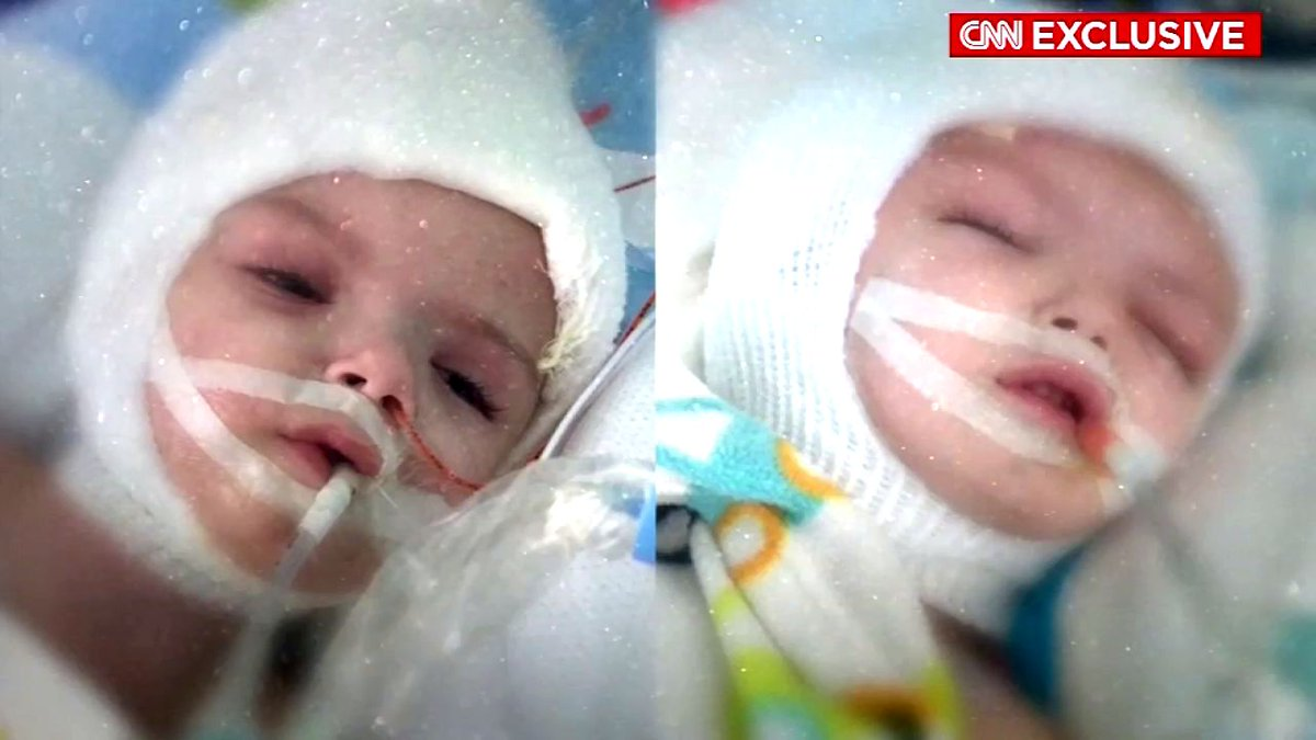Conjoined twins update: Separated boys resting in separate beds days after risky surgery