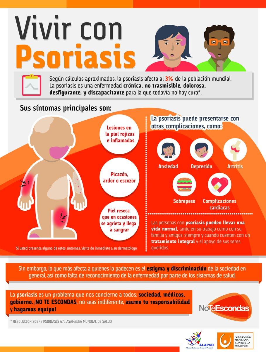 La psoriasis la clínica y el tratamiento