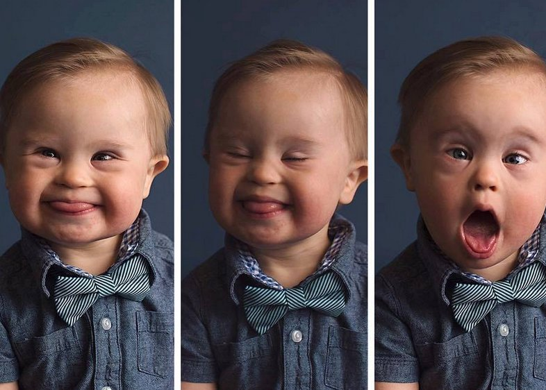 Mom's aim to get son with Down syndrome featured in ad campaign goes viral