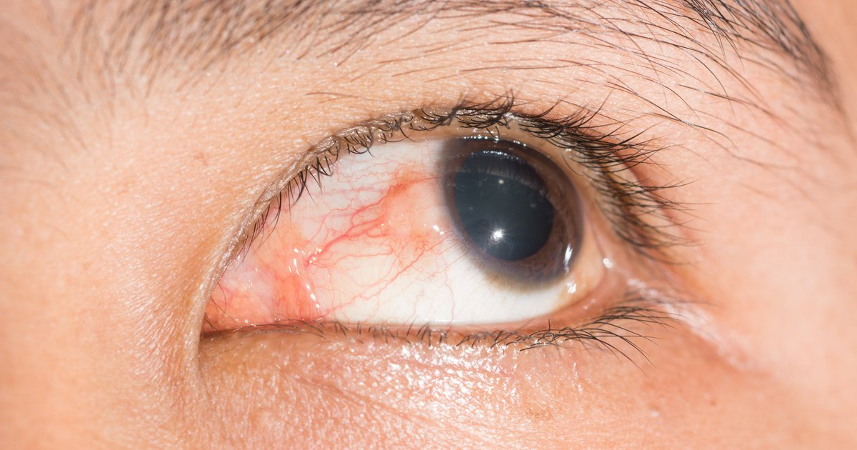 Episcleritis hashtag on twitter for Fishing eye syndrome