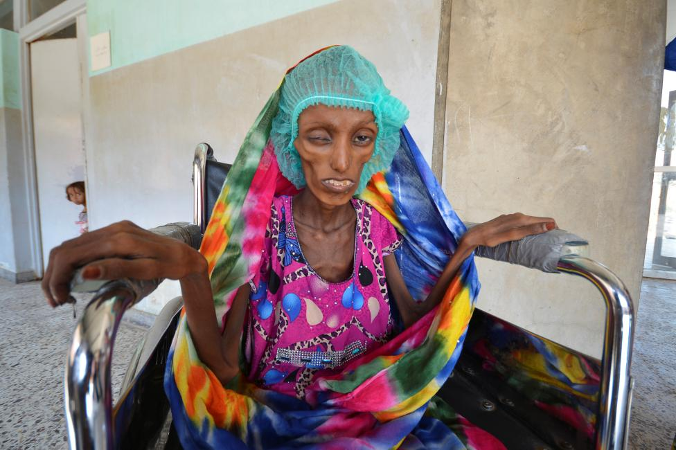 Woman in Hodeidah where people are dying of starvation due to US-Saudi bombing & blockade #600DaysOfKillingYemenis