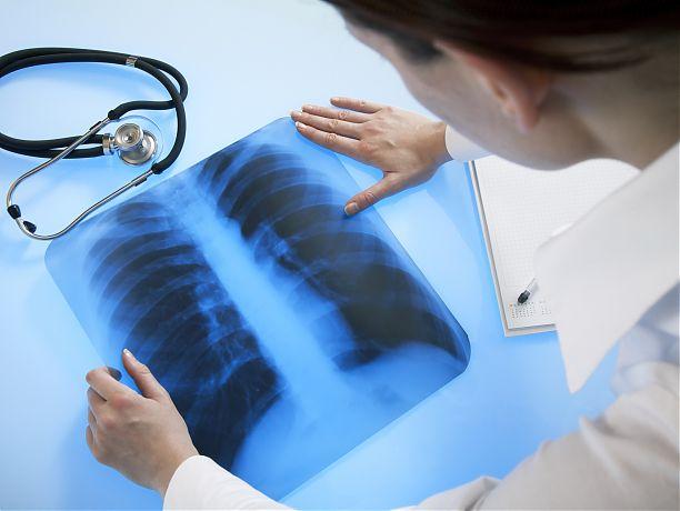 Ученые: рентген безопасен для человека