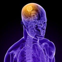 La sensación del peso en el departamento de pecho de la columna vertebral