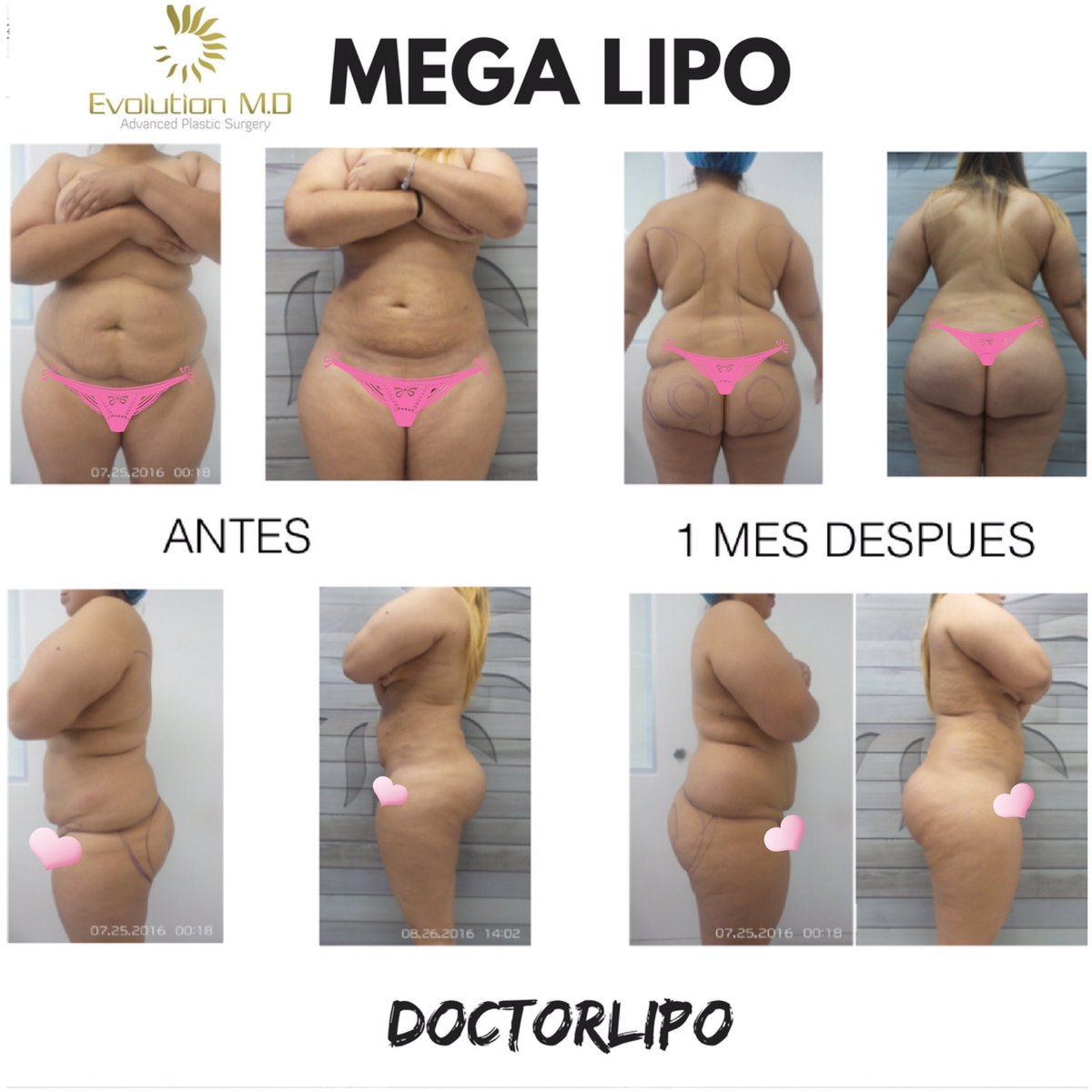 Mega liposuction