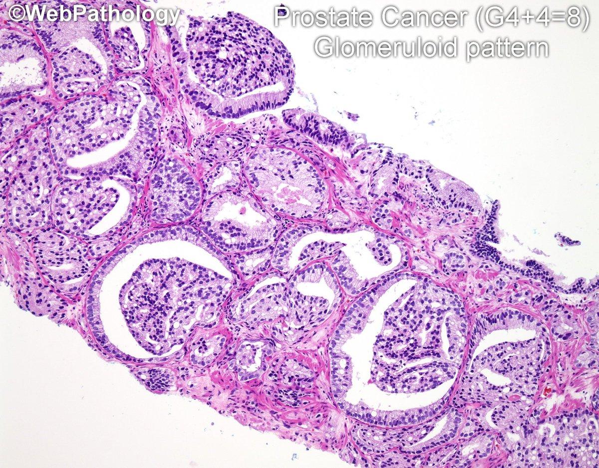prostate adenocarcinoma gleason score 8