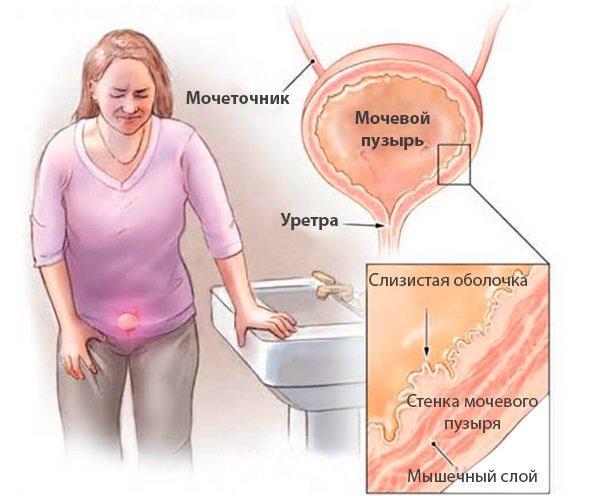 Лечение пиявками сканворд