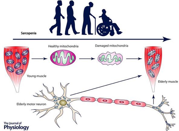 overview of sarcopenia Current protein & peptide science covers a field by discussing research from the leading laboratories in a field and  sarcopenia: an overview on current.