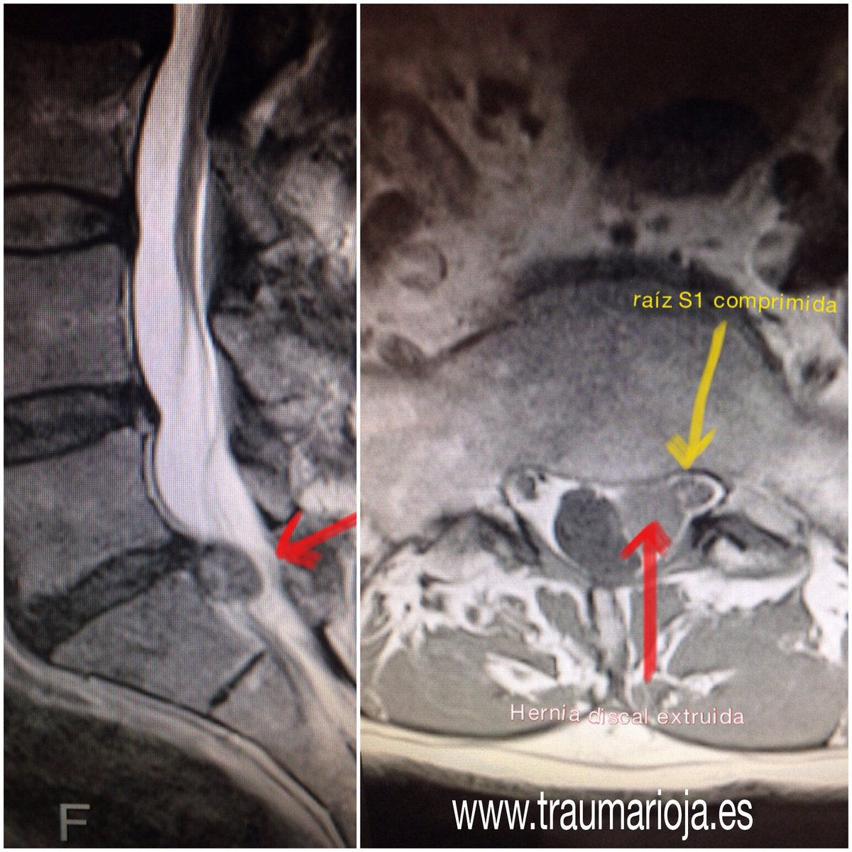 Traumatología On Twitter Hernia Discal L5 S1 Posterolateral Izquierda De Gran Tamaño Que Comprime La Raiz S1 Ipsilateral