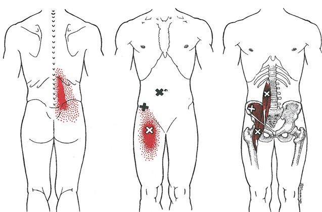 Dolor en el musculo psoas iliaco