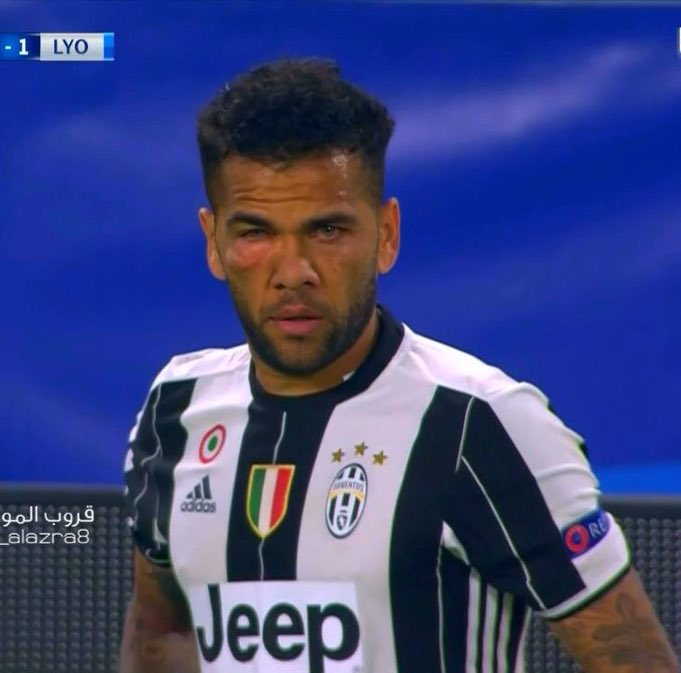Il viso di Dani Alves in Juventus-Lione 1-1.
