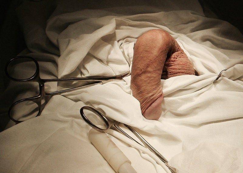 Порно клип фото члена медицина фото крупным