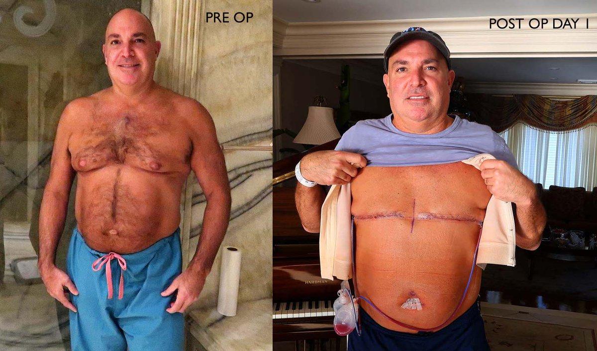 Male breast developer