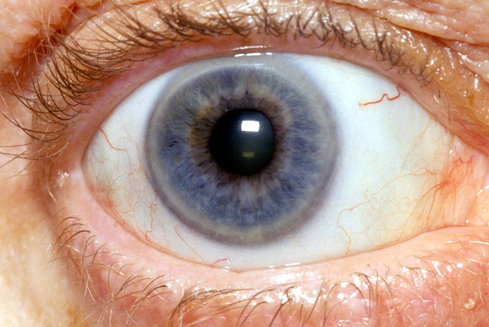Silmäluomet Turvoksissa